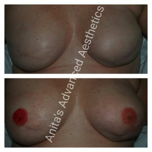 3D Areola Cosmetic Tattooing