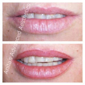 Lip Liner Cosmetic Tattooing