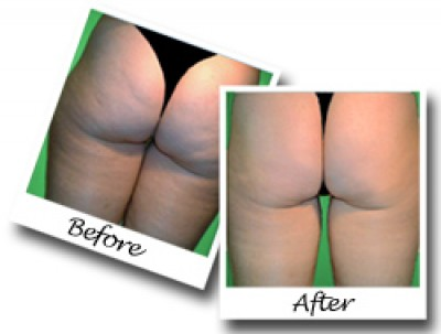 What Cellulite looks like